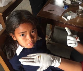 dental checkup of a girl in nepal by a medical volunteer